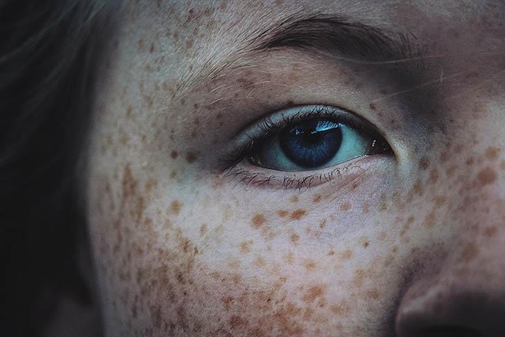 manchas antigas no rosto